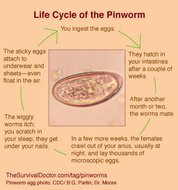 Pinworms or anal worms how to catch them